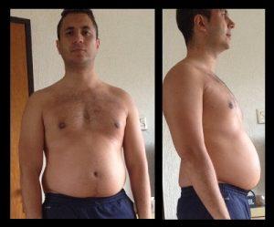 Mijn overgewicht 4 maanden na de achillespees ruptuur