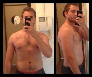 achillespees ruptuur overgewicht